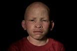 albinos9
